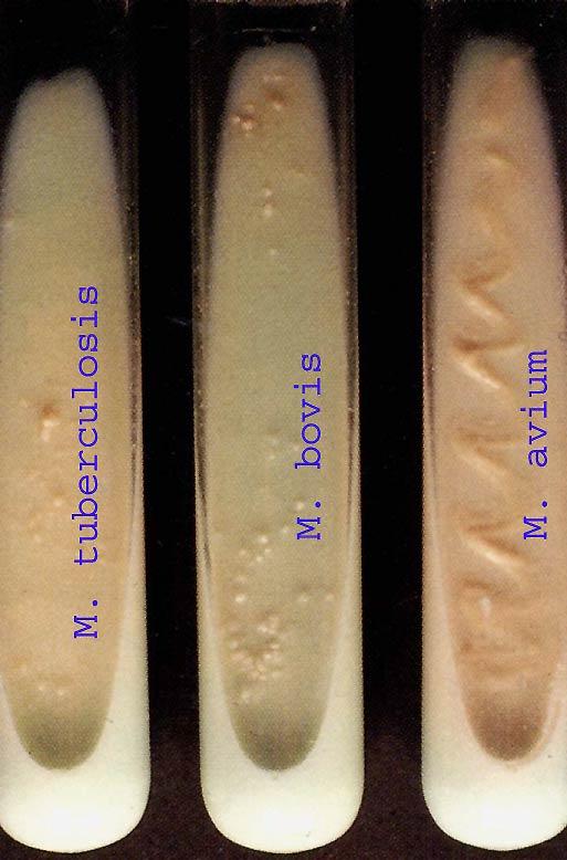 Микобактерии фото
